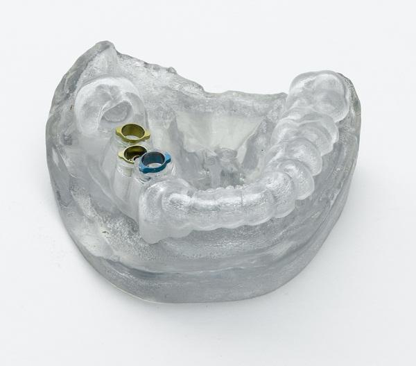 Dental model from Objet