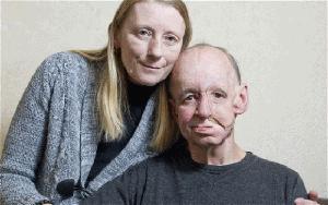 face, prosthetic, UK, doctor, surgery, medicine
