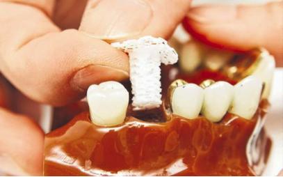 3D printing, dental, bone, dentistry, medicine