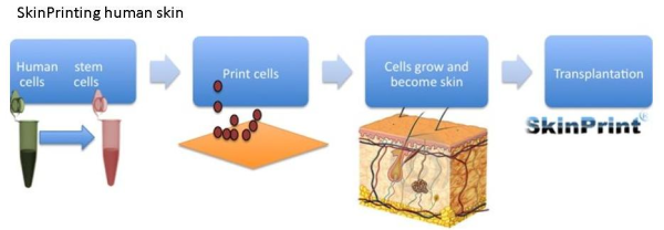 skin, medicine, print, stem cell, transplant, burn, disease