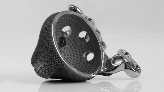 3D printing, metal, medicine, hip