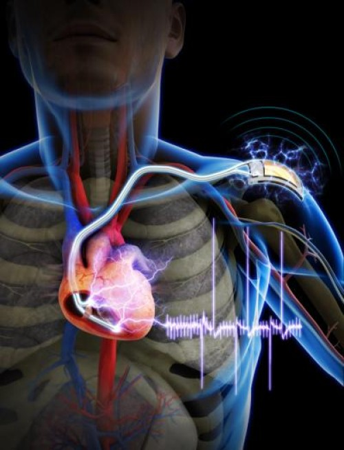 The First Demonstration Of A Self Powered Cardiac Pacemaker