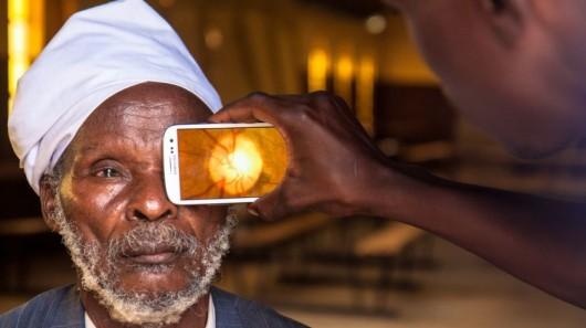 smartphone, medicine, eye, opthemology, africa, doctor, surgeon,