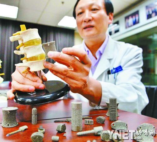 china, 3d printing, medicine, titanium, alloy, surgery, implant