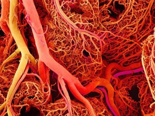 3D Printing: An Answer for Cardiovascular Disease?