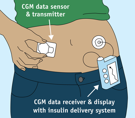 Sensors Today And 50 Years From Now Gt Engineering Com
