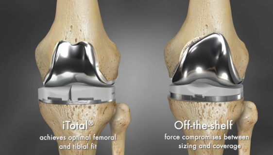 3d Printing Offers Solution For Joint Replacement